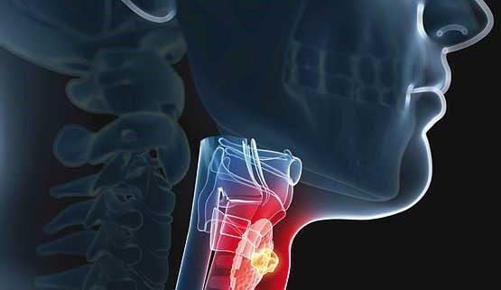 دلایل اصلی تغییر ناگهانی صدا؛ از جراحی بینی تا سرطان حنجره!
