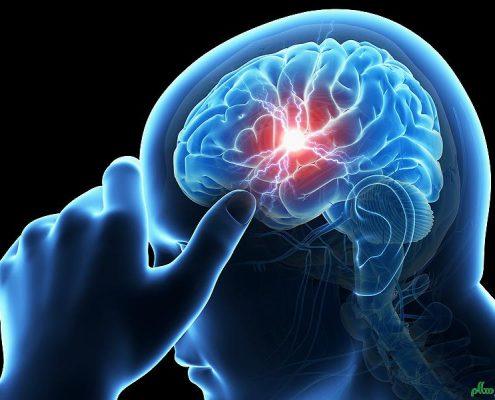 عصب واگ/ مغز انسان