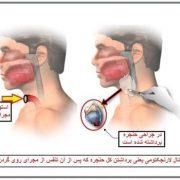 گرفتگی صدا و درمان آن