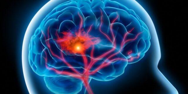 گفتار درمانی ، کاردرمانی سکته مغزی
