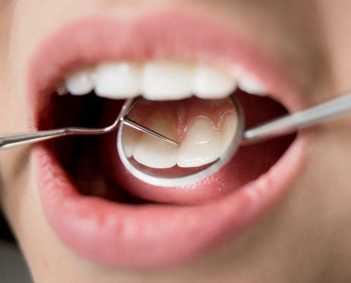 بهداشت دهان و دندان در سالمندان