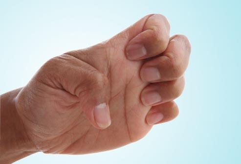 تمرین کاردرمانی دست